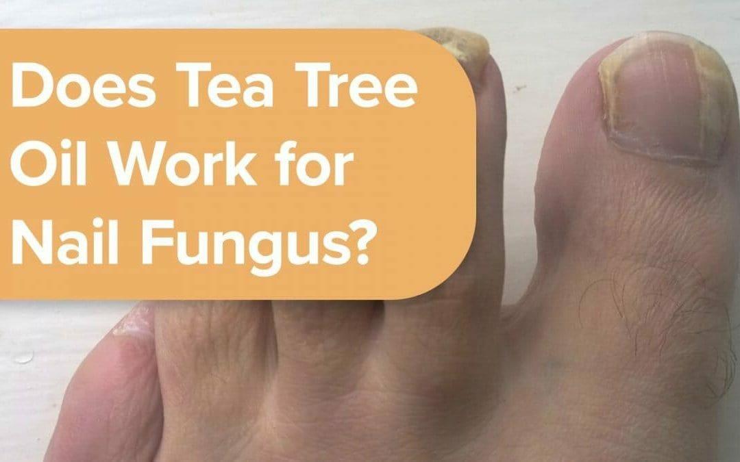 茶樹油可用於指甲真菌嗎?
